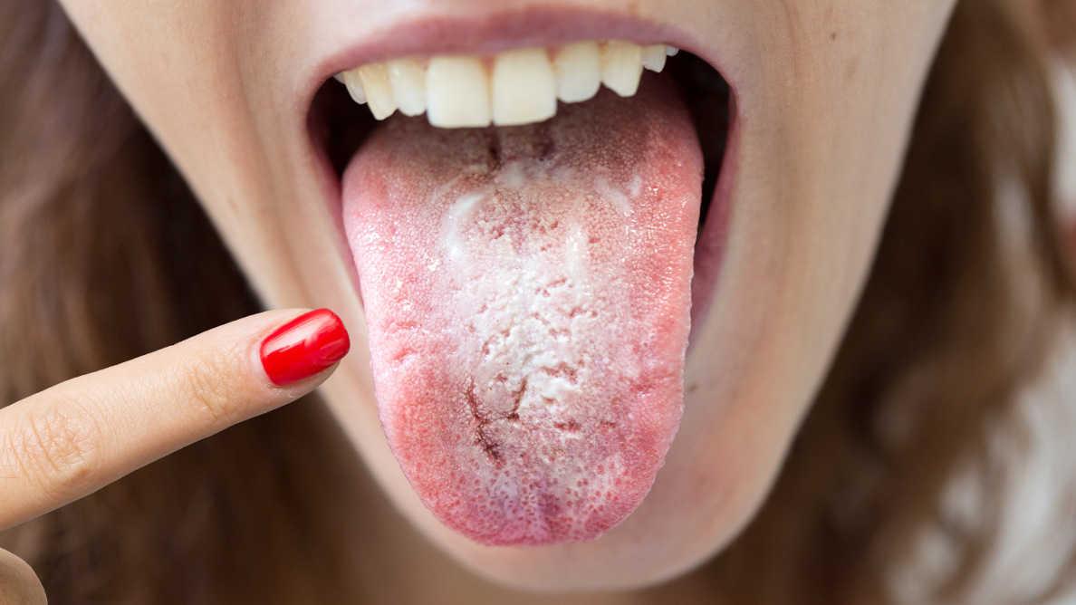 """""""COVID jezik"""" – stomatolozi ukazuju na važnost primjećivanja simptoma u usnoj duplji"""
